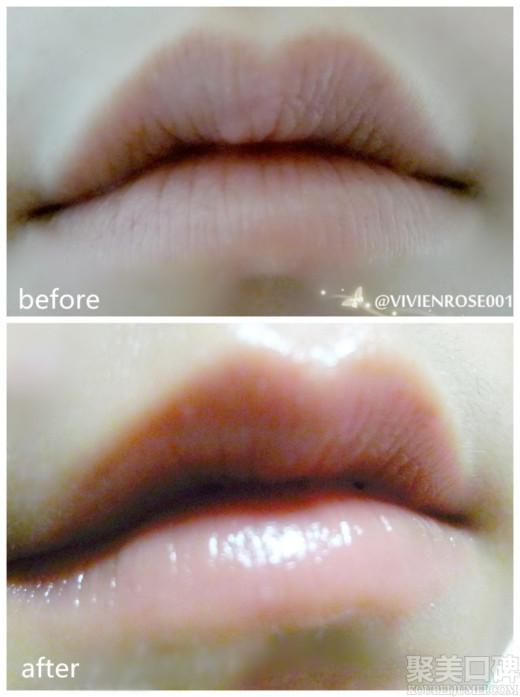 速润泽干燥的唇部肌肤